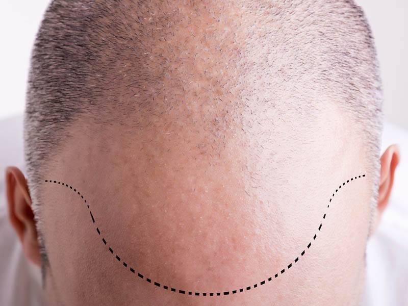 Hajhiány kezelése, hajpótlás