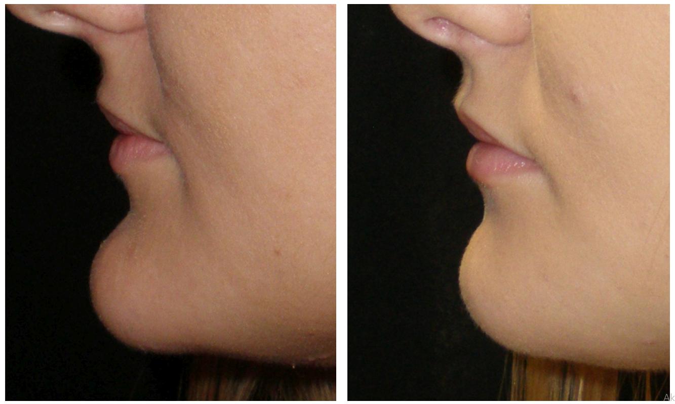 Állkisebbítés előtt és után (Fotó: Dr. Novoth - Dr. Végh)