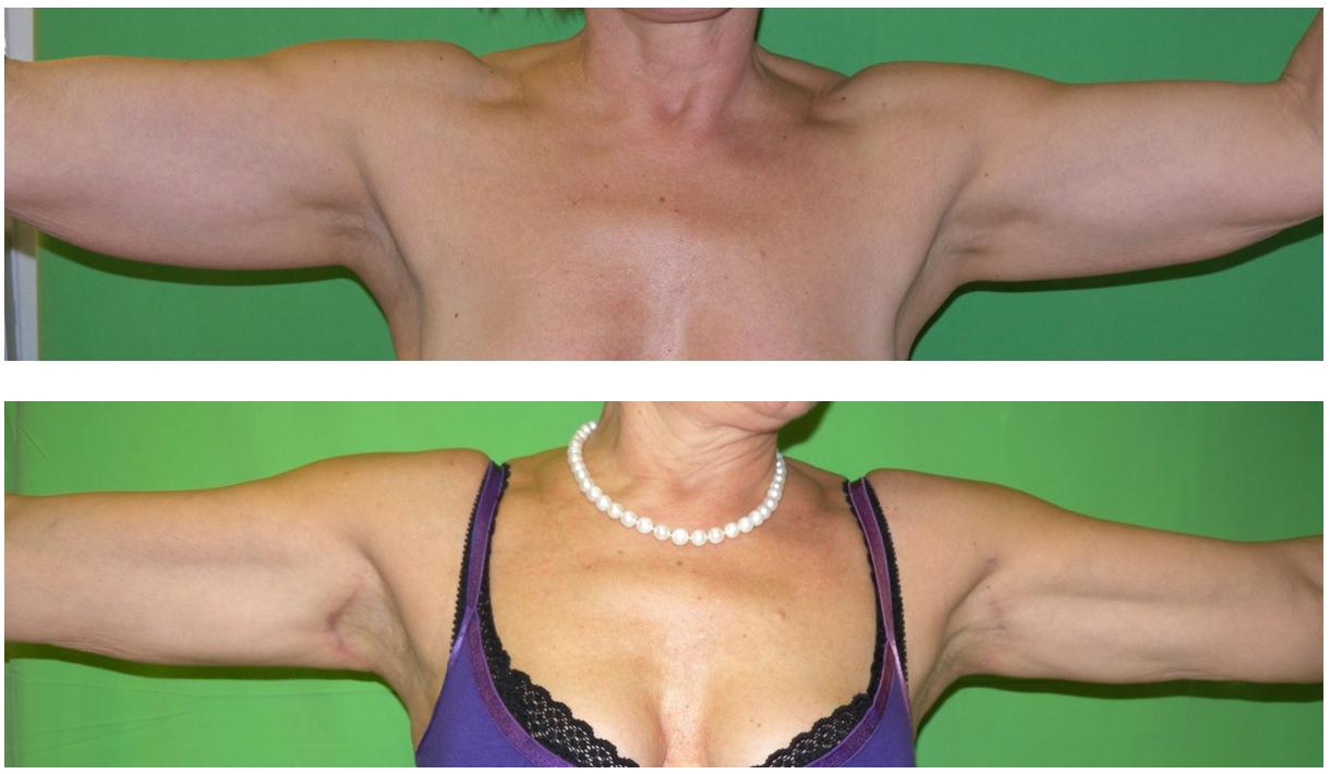 Felkarplasztika előtt és után