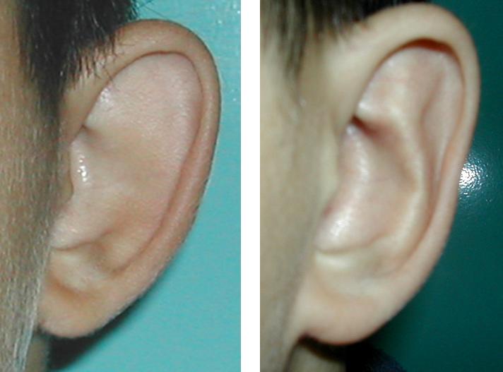 Fülplasztika előtt és után. Fotó: Dr. Novoth - Dr. Végh