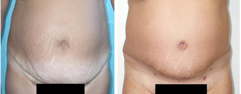 fogyás a hasplasztika előtt vagy után a 47 éves kor nem tud fogyni