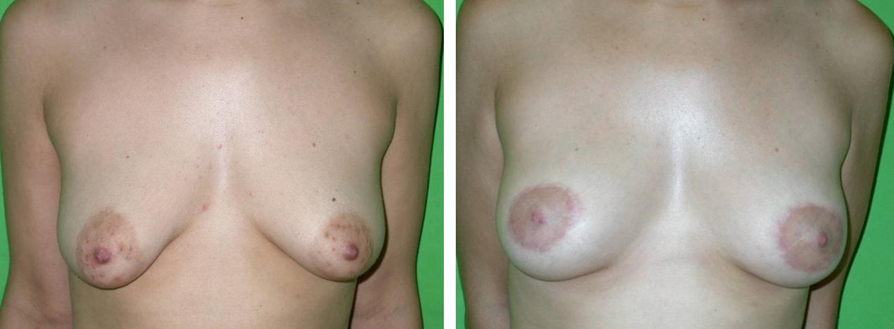 fordított T mell felvarrás műtét előtt és után. Fotó: Dr. Novoth - dr. Végh