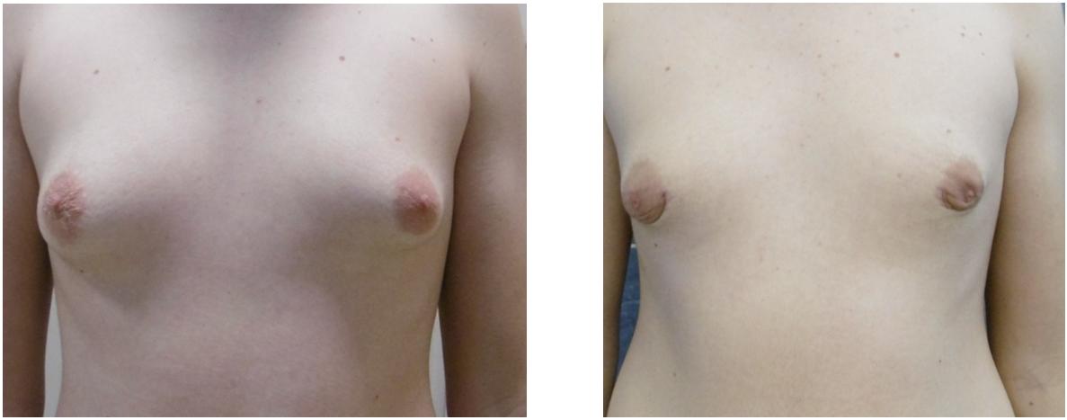 Mellkisebbites (gynecomastia ) műtét előtt és után. Fotó: Dr. Novoth - dr. Végh