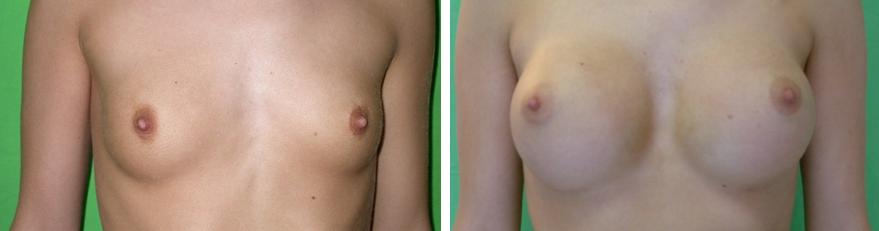 Mell felvarrás műtét előtt és után.