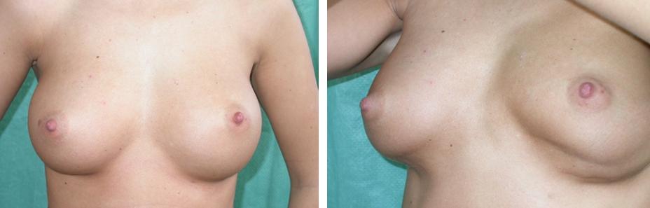 mell nagyobbítás implantátummal, illetve feszítéskor látható rejtett hiba - Fotó: dr. Novoth - dr. Végh