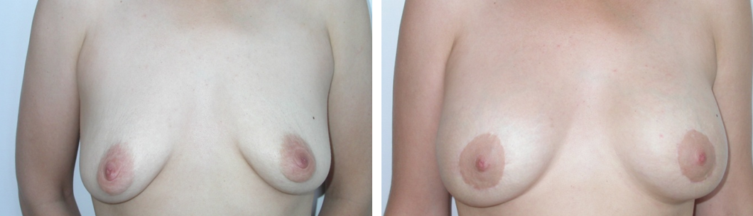Mellnagyobbítás és felvarrás bimbóudvar körüli behatolással: előtte és utána. Fotó: Dr. Novoth - dr. Végh