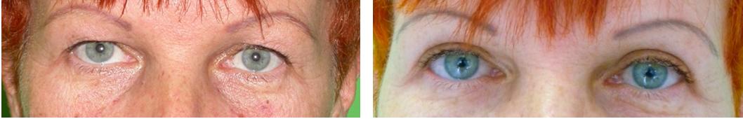 Felső szemhéjplasztika műtét előtt és után. Fotó: dr. Novoth - dr. Végh