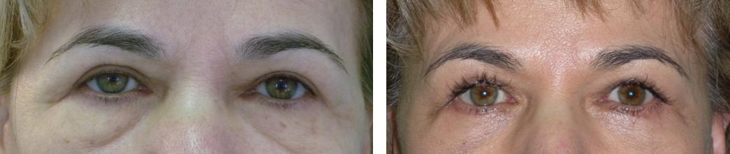 Alsó szemhéjplasztika műtét előtt és után. Fotó: dr. Novoth - dr. Végh