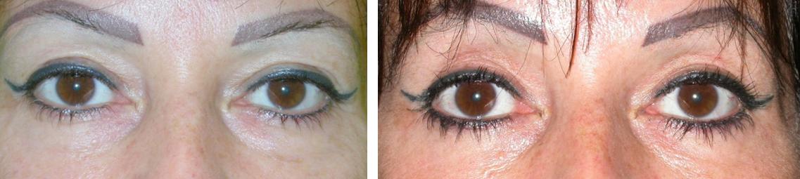 Alsó-felső szemhéjplasztika műtét előtt és után. Fotó: dr. Novoth - dr. Végh