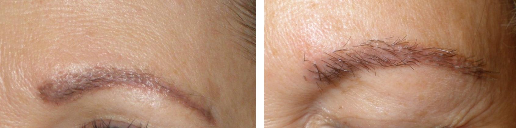 Szemöldök beültetés előtt és után. Fotó: dr. Novoth - dr. Végh