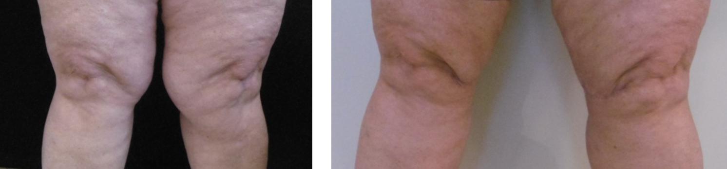 Térdplasztika előtt és után. Fotó: Dr. Novoth - Dr. Végh
