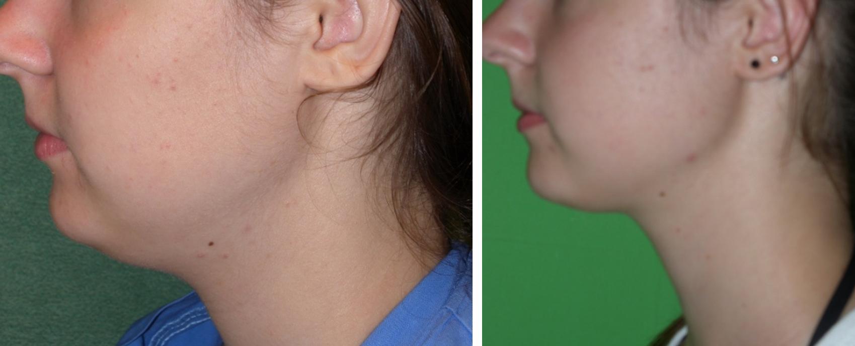 Toka zsírszívás műtét előtt és után. Fotó: Dr. Novoth - Dr. Végh