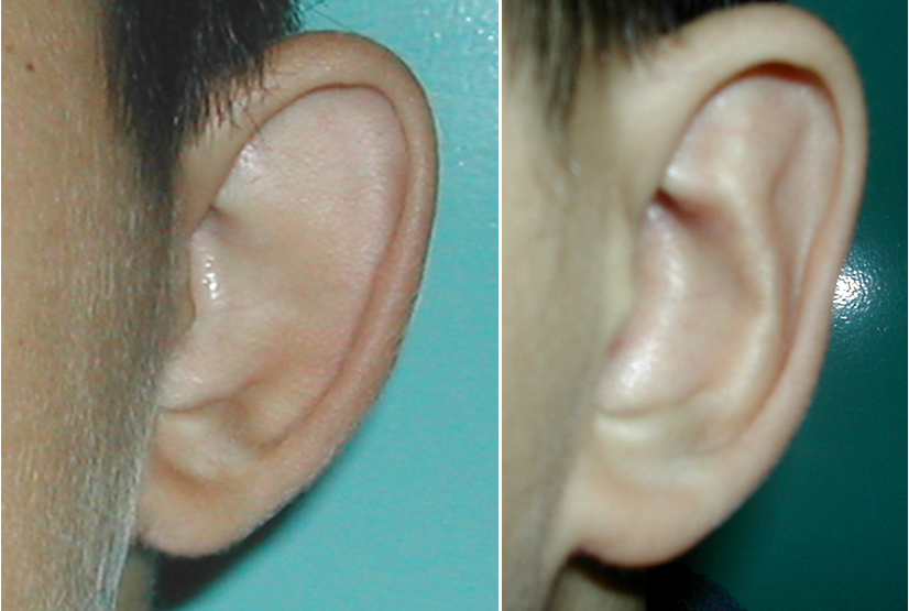 fül plasztika