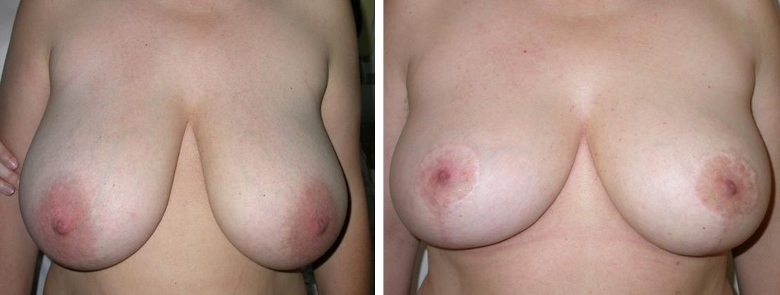 Mell kisebbítés műtét után fordított T. Fotó: Novoth - Végh