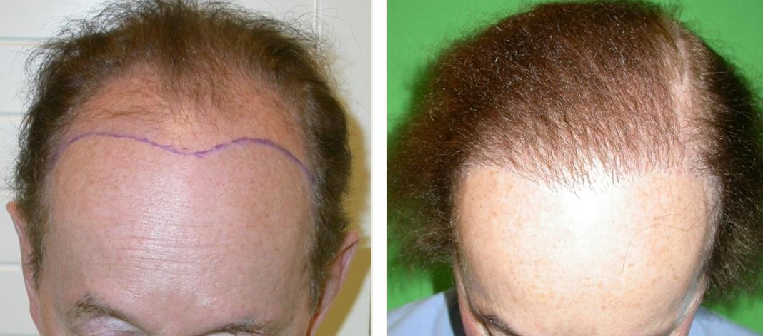 Hajbeültetés előtt és után. Fotó: dr. Novoth - dr. Végh