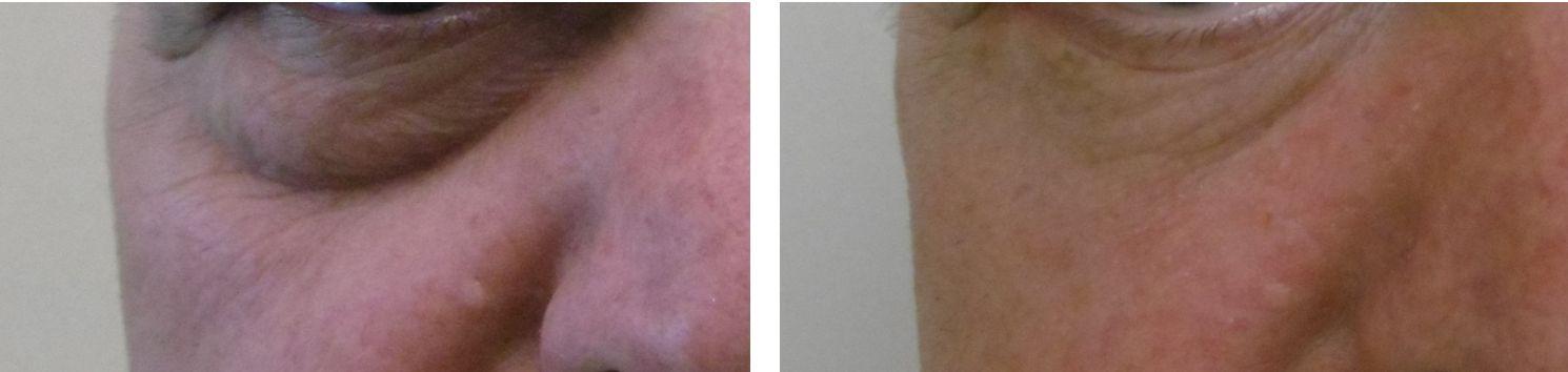 Alsó szemhéjplasztika: előtte és utána (dr. Novoth Béla)
